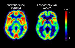 relação entre Menopausa e alzheimer